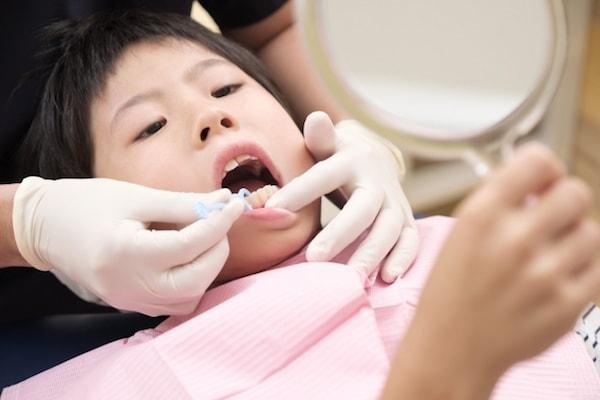 歯医者歯石